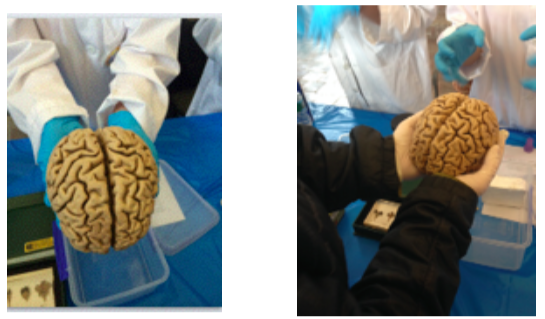 Linda Holding Human Brain